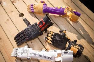 اليد الصناعية الذكية