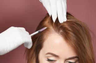 اسعار علاج الشعر