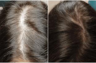 بلازما الشعر قبل وبعد