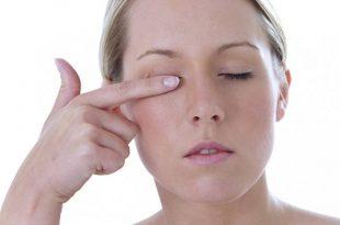 فوائد العسل لحساسية العين
