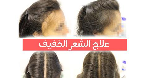 مراكز علاج الشعر بالبلازما