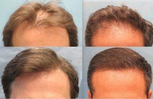 تجارب عن زراعة الشعر في تركيا