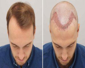 تجربتي مع زراعة الشعر في اسطنبول