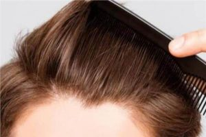 تكلفة زراعة الشعر اسطنبول