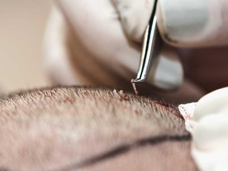 تكلفة زراعة الشعر في تركيا اسطنبول