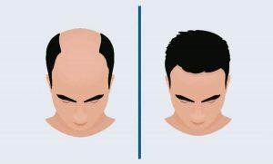 تكلفة زراعة الشعر في تركيا بالتفصيل