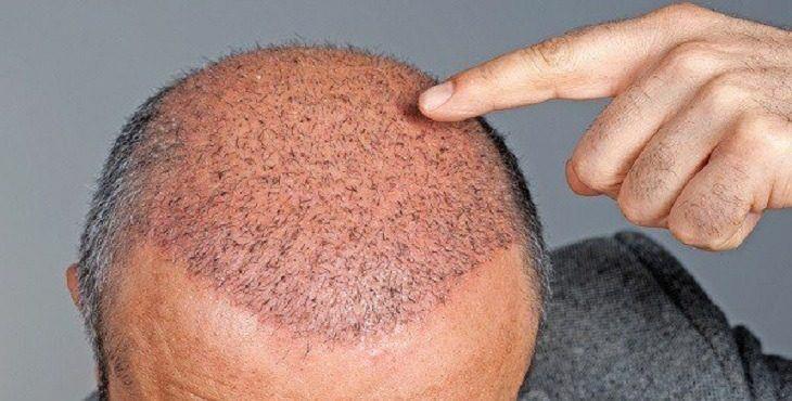زراعة الشعر في اسطنبول تجارب
