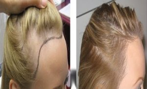زراعة الشعر للنساء بدون حلاقة