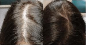 زراعة الشعر للنساء قبل وبعد