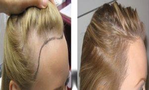 كيفية زراعة الشعر في اسطنبول