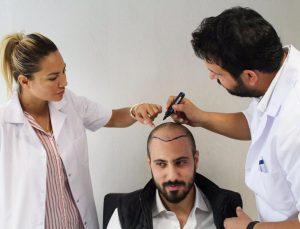 للرجال زراعة الشعر في اسطنبول