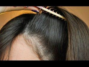 مراكز زراعة الشعر في اسطنبول