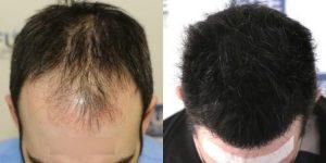وإليكم تجربة في زراعة الشعر في تركيا