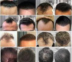 أفضل أطباء زراعة الشعر في أسطنبول