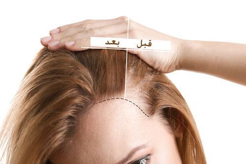 افضل دكتور زراعة الشعر في اسطنبول