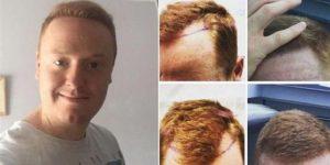 خدمات زراعة الشعر في تركياخدمات زراعة الشعر في تركيا