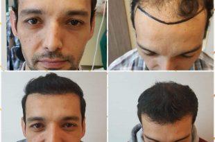 زراعة الشعر في اسطنبول السعر