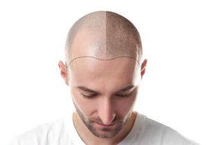 زراعة الشعر فيتركيااسطنبول