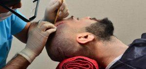 مستشفى زراعة الشعر في تركيا اسطنبول
